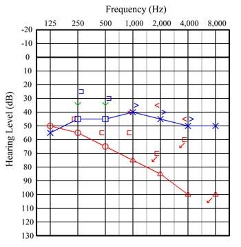 l'Audiogramme:オージオグラム(...